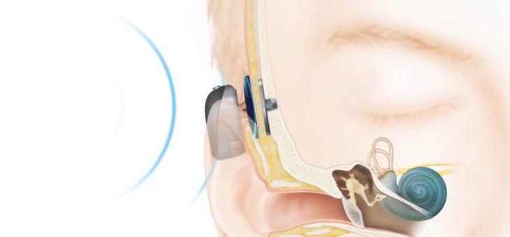 Rozpoczynamy wszczepianie implantów słuchowych zakotwiczonych w kości!
